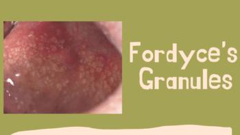 Fordyce's Granules